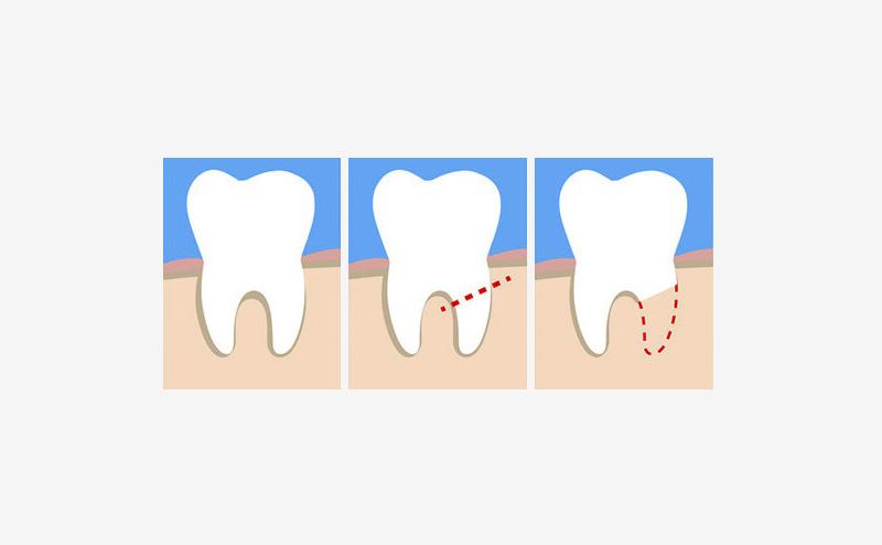 Процедура короно-радикулярної сепарації зуба