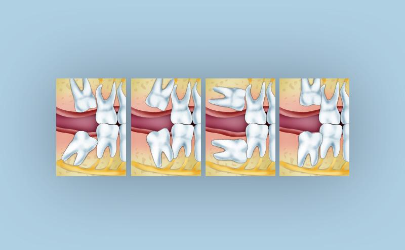 Зуби, що потребують атипового видалення