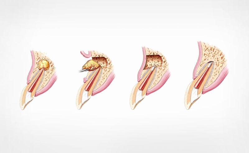 Процес резекції верхівки кореня зуба