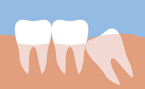 Атипове видалення зубів мудрості