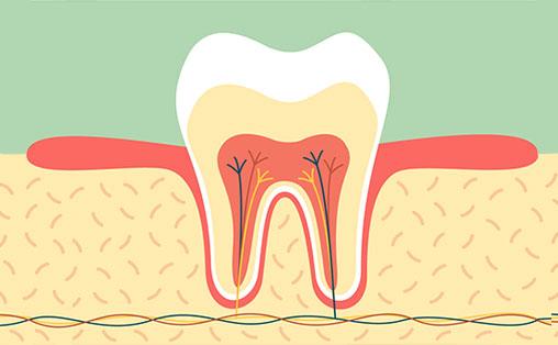 Лікування кореневих каналів